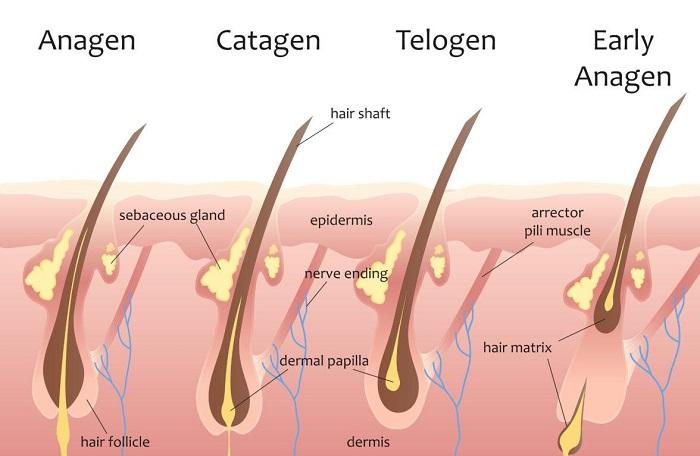 درمان موی زائد با الکترولیز