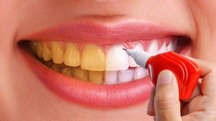 عوارض بلیچینگ دندان چیست؟