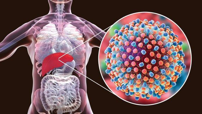 هپاتیت چیست و چگونه منتقل می شود؟