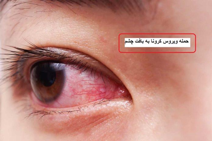 اطلاعات جدید درباره ویروس کرونا، آسیب کرونا به بافت چشم