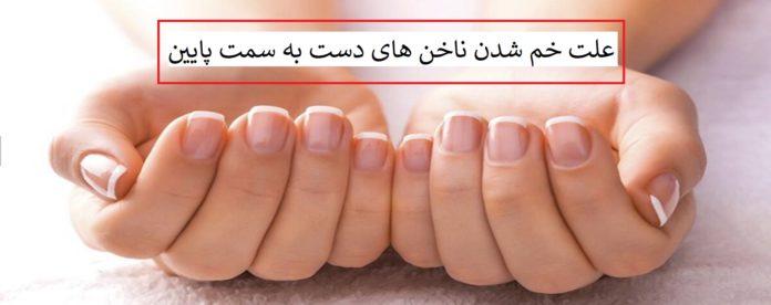 علت خم شدن ناخن های دست به سمت پایین