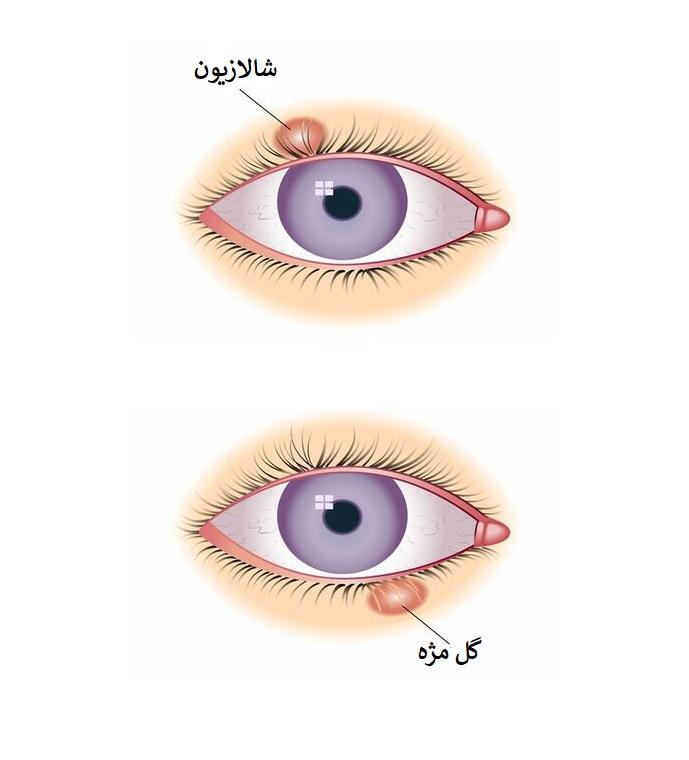 بیماری چشمی شالازیون چیست