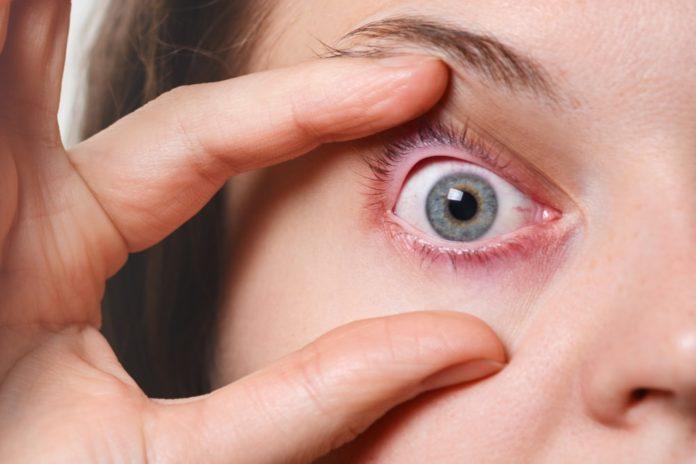 بیماری چشمی شالازیون چیست (تفاوت شالازیون و گل مژه)